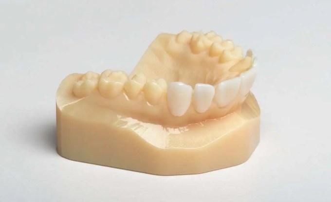 Modelo de arcada dentária impressa em 3D na cor bege. Dentes da parte inferior da boca posicionados na frente brancos.