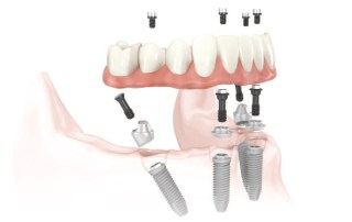 Implant Retained Denture Schematic