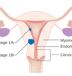 uterine cancer [ 2000 x 1456 Pixel ]