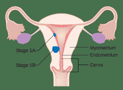 small resolution of uterine cancer
