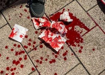 ANGREP JOURNALISTER. En journalist fikk en flaske i hodet under 1. mai demonstrasjonen i Hamburg. (Faksimile Twitter).