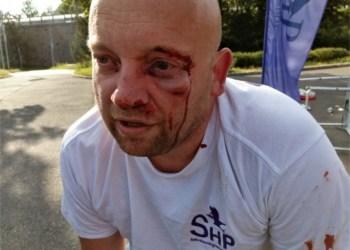 BRUTALT OVERFALT: Reinert Skadsem ble brutalt overfalt av Antifa da de hadde en stand før valget. (Foto: Privat).