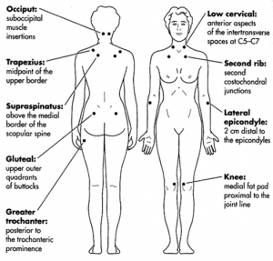 The Role of Manual Lymphatic Drainage in Fibromyalgia