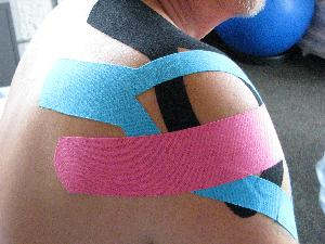 Kinesiology Tape Treatments at Lyn Lake Chiropractic