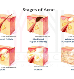 acne acne scar solutions in gurgaon treatment of acne and acne scars in gurgaon [ 1280 x 720 Pixel ]