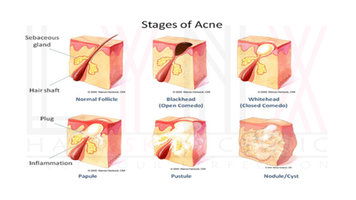 small resolution of acne acne scar solutions in gurgaon treatment of acne and acne scars in gurgaon