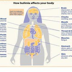 Vagus Nerve Diagram Free Ford Giveaway The Role Of In Bulimia This Section Webpage Gives Information About Past Research Which Provides A Base For Current On Stimulation