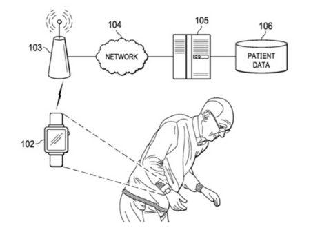 In futuro l'Apple Watch come aiuto nel trattamento del morbo di Parkinson