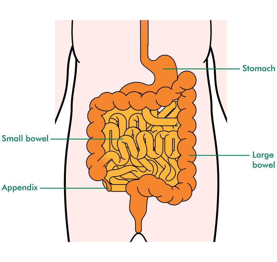 where are your appendix located diagram sv650 k3 wiring pseudomyxoma peritonei pmp macmillan cancer support the digestive system