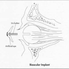 Diagram Of Artificial Eye Lotus Blank How Is Made Material Making History Used For A Bioocular Implant The Surgeon Makes An Incision Around Iris And Then Removes
