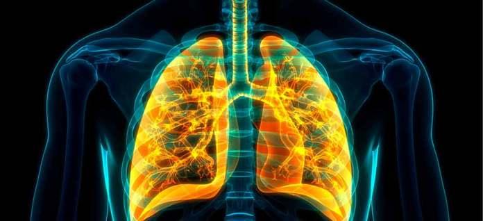 La app que monitoriza a pacientes con cáncer de pulmón metastásico 2