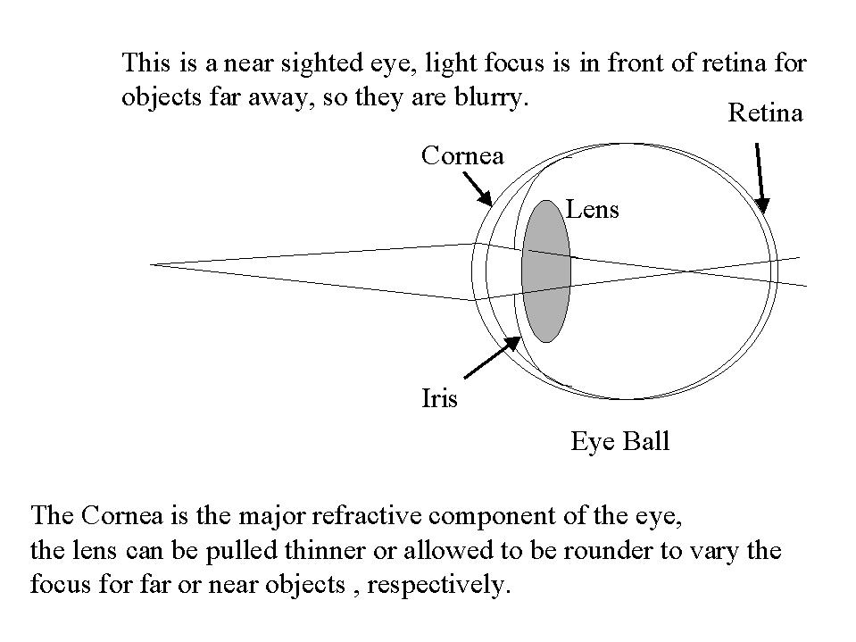 long and short sighted diagram porsche 996 wiring diagrams re: how do contact lenses adjust eye sight?