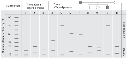 Principle of laboratory diagnosis of unstable trinucleotide repeats leading to expansion