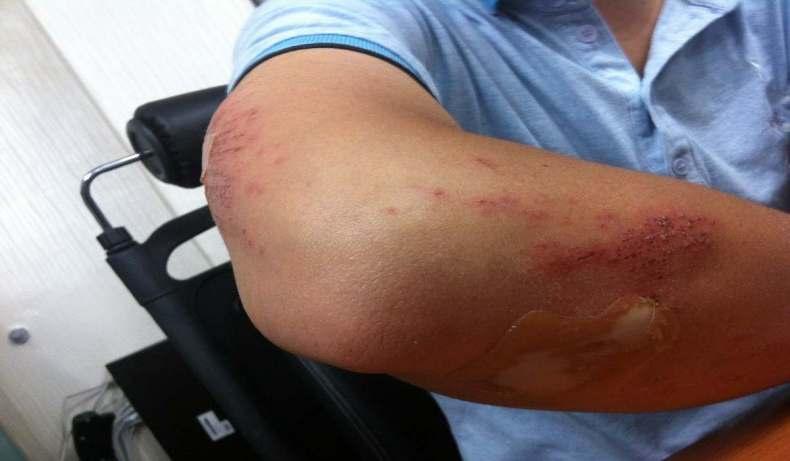 Physical Injury