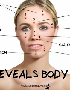 Chinese Acne Chart Wwwhomeschoolingforfreeorg - Chinese face map for acne