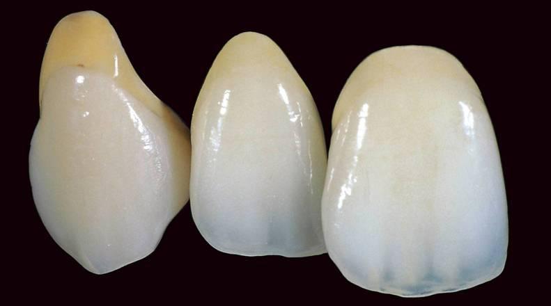 Prosthesis for missing teeth   Magic Smile - Praha 2