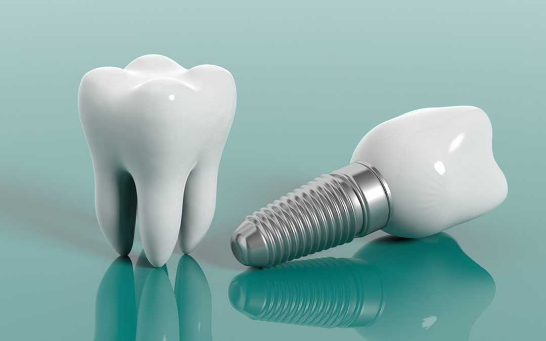 Dental Implants - Magic Smile Turkey