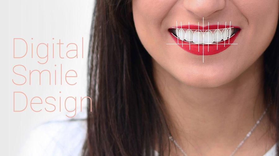 Digital Smile Design