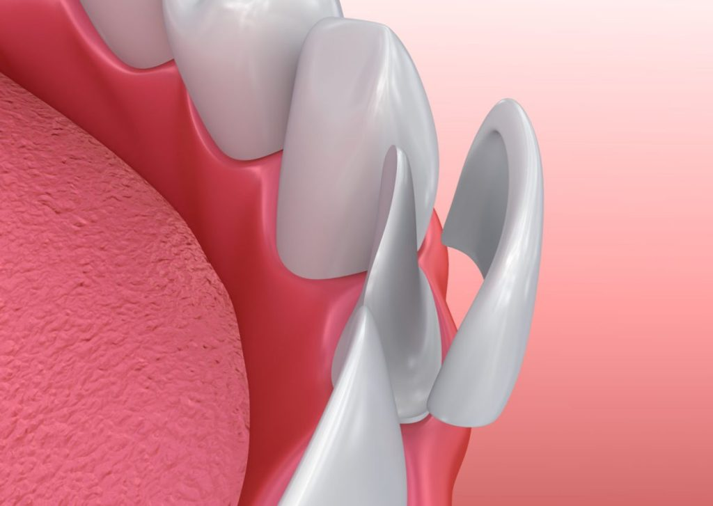 dental veneers magic smile