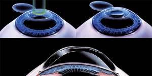 lasik-hipermetropia