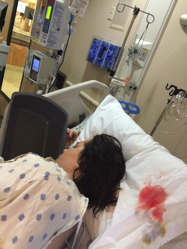 ICU after Brain Surgery