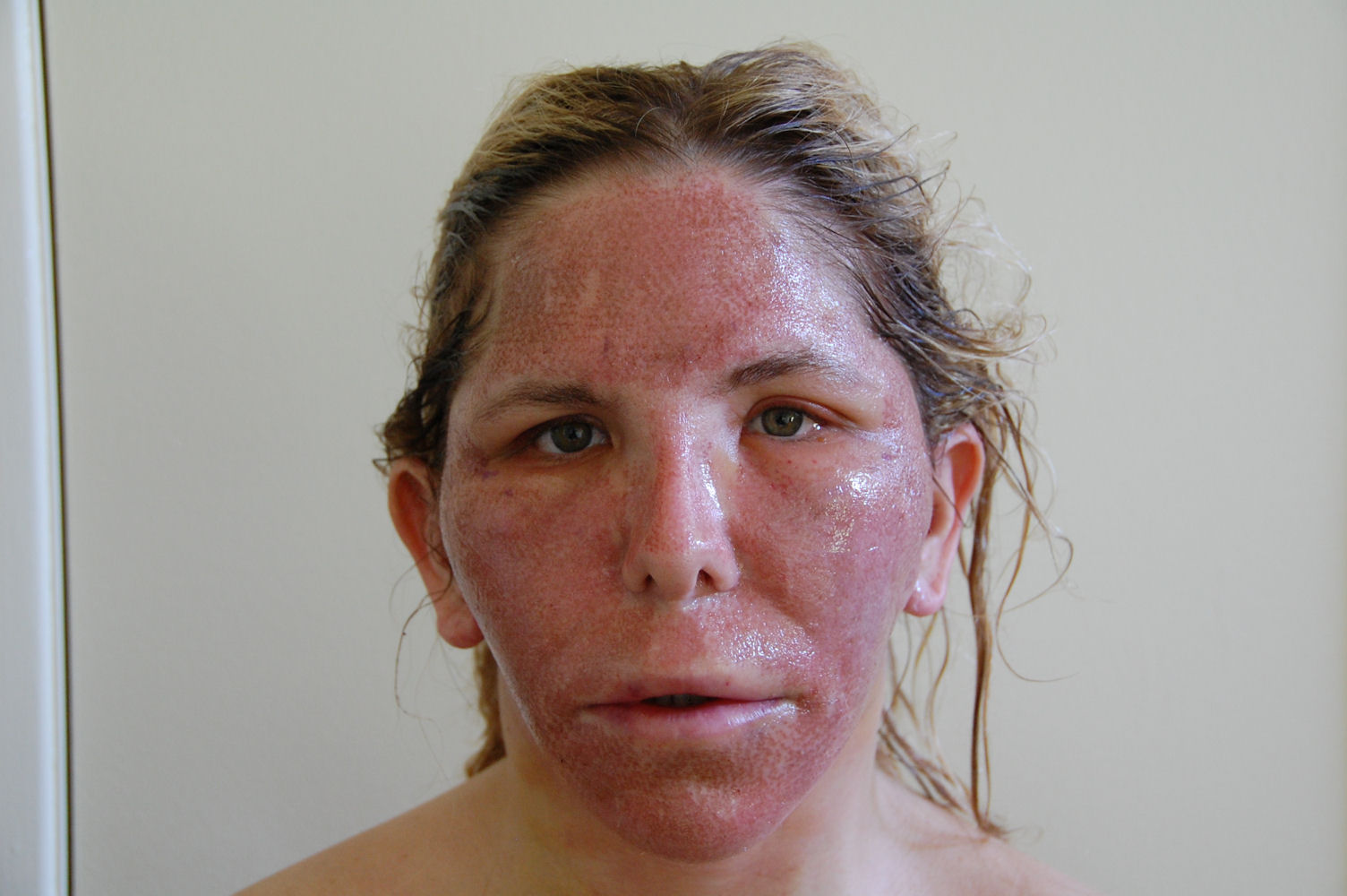 post op day 2 pic 1 Face Lift Pictures Photos