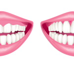 Gum Contouring Surgery- Know all about it.