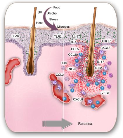 hormonal acne diagram lexus is300 o2 sensor what is rosacea? – makeup and medicine