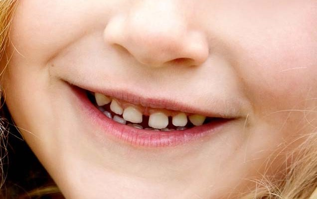Four Easy Ways To Stop Tooth Decay In Toddlers