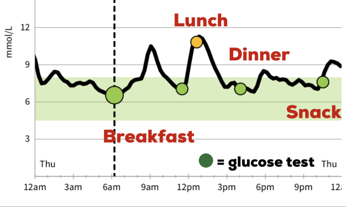 24 Hour Glucose Trend Line from my Abbott FreeStyle Libre CGM (Continuous Glucose Monitor). You can see the spikes in my blood sugar.