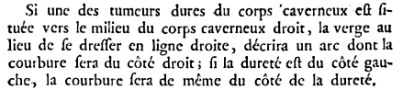 Maladie de Lapeyronie - Description