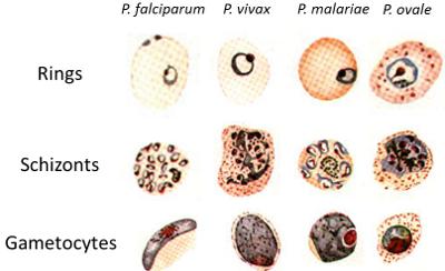 Microscopic Tests – Malaria Site