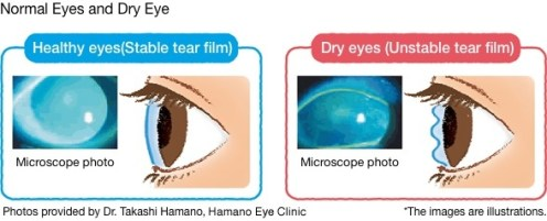Normal eyes vs dry eyes