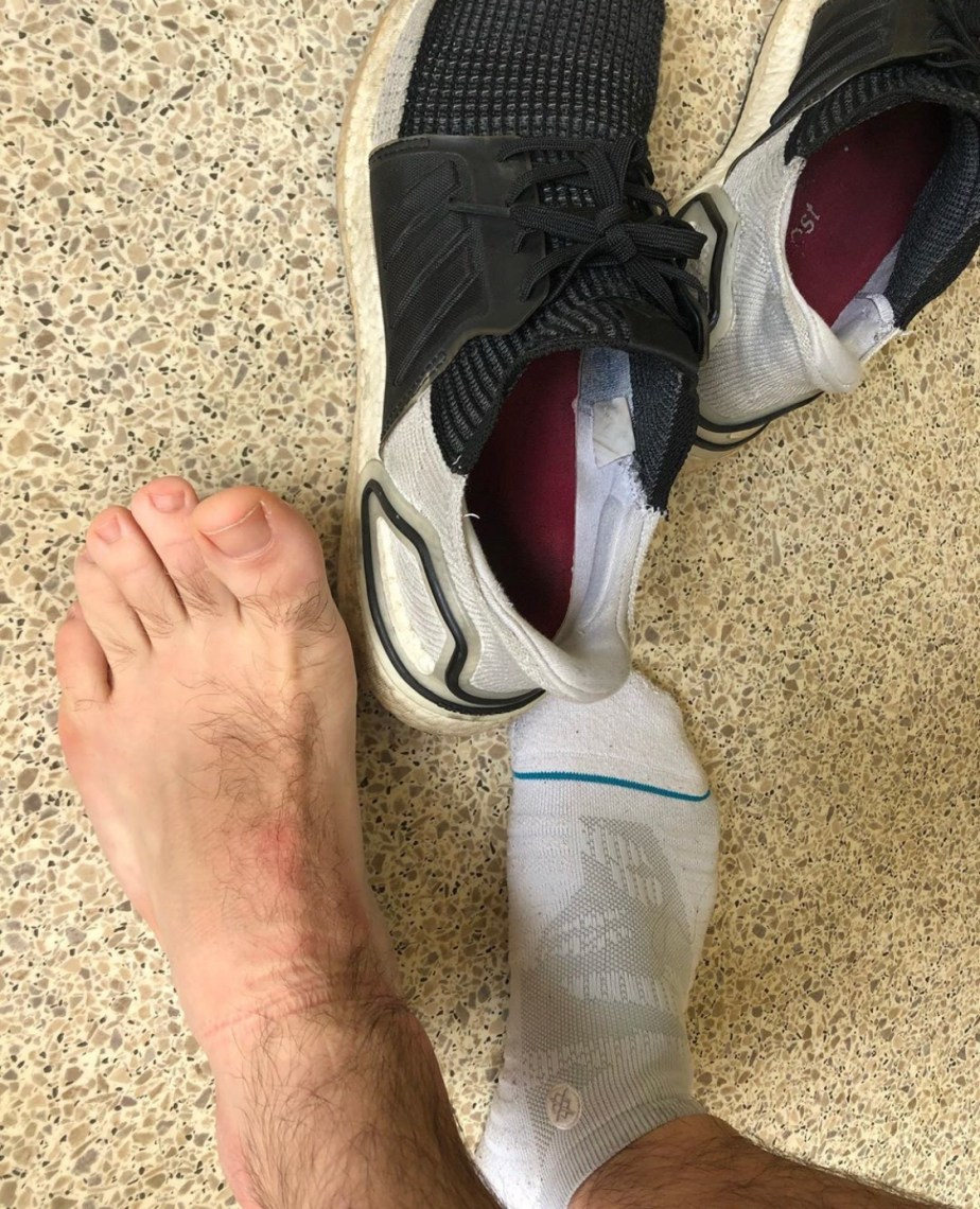 Jakesamazingfeet's bare feet in and out of Stance ankle socks and Adidas sneakers