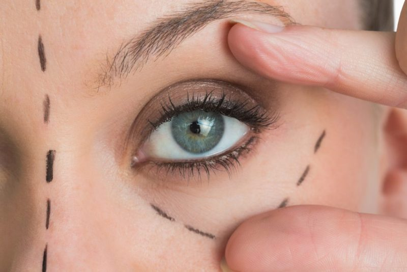 Eye Makeup After Surgery Eyelid