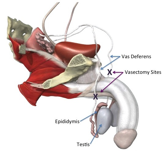Vasectomy reversal anatomy