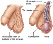 Varicocele diagram