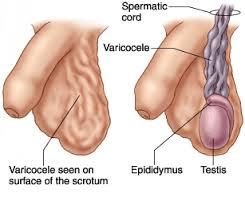 Varicocele diagram