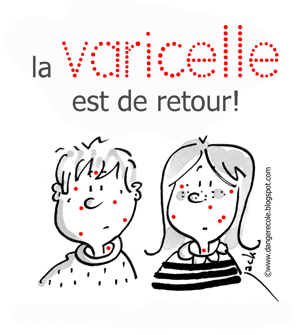 photo drole varicelle