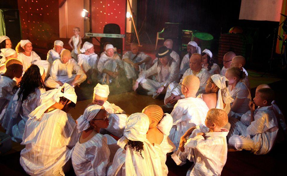 Actualités du Mali - Mali : l'assassinat des albinos, un «crime rituel»