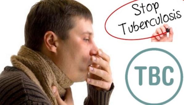 Gejala TBC dan Ragam Pengobatannya