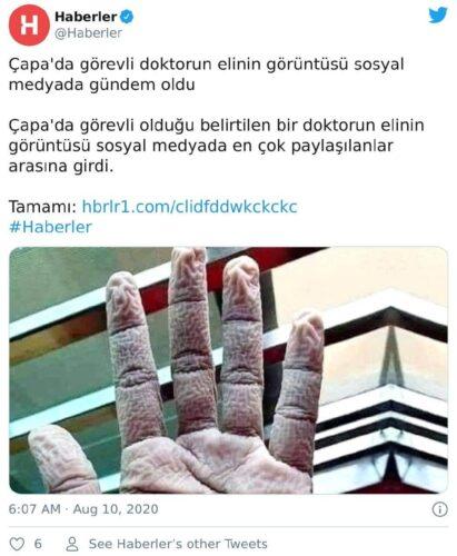 doktorun eli