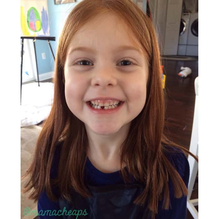 lily lost tooth