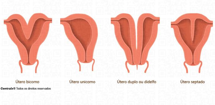 má formação congênita do útero