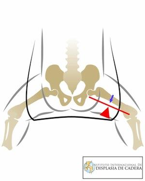 posicion-correcta-de-cadera