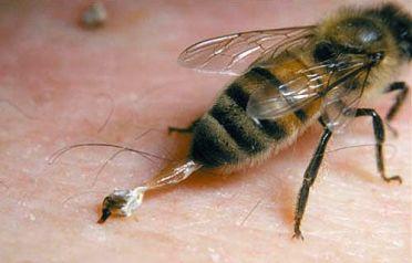 HoneybeeStinger01