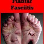 Best Plantar Fasciitis Treatment
