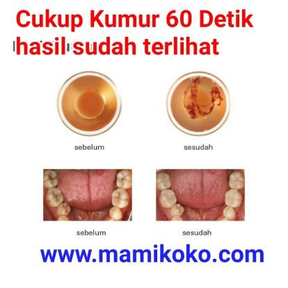 Hasil Kumur Dr Dental Care Liquid, Perawatan Gigi Behel, Menghilangkan Bau Mulut, Membersihkan Karang Gigi di Bali, Jakarta, Surabaya