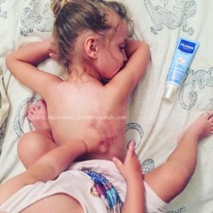 protezione latte solare