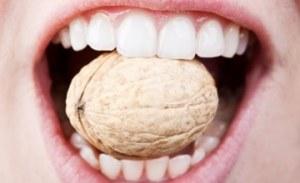 Ricostruzione dentale nei bambini: è utile o dannosa? - Mother's Milk